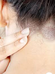 Best treatment for eczema very effective